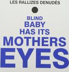 Blind Baby Has Its Mother's Eyes