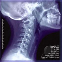 Pascale Picard Band - Trauma CD Cover Art